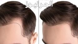 تكلفة زراعة الشعر في السعودية