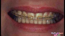 وصفات تبييض الأسنان بسرعة