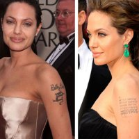 Angelina Jolie's Tattoo Removal