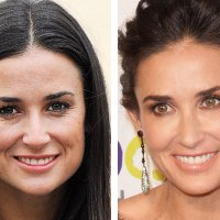 Demi Moore's Non-Surgical Face Lift Cost Breakdown