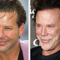 BAD Plastic Surgery Awards - Mickey Rourke