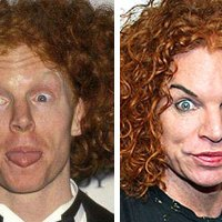 BAD Plastic Sugery Awards - Carrot Top