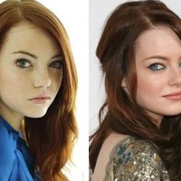 A Emma Stone Before and After Comparison