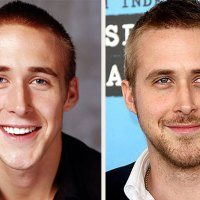 Ryan Gosling Nose Job Before and After Pics