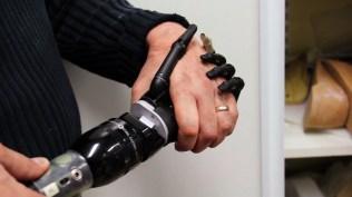 la-mecanique-des-corps-prothese-main