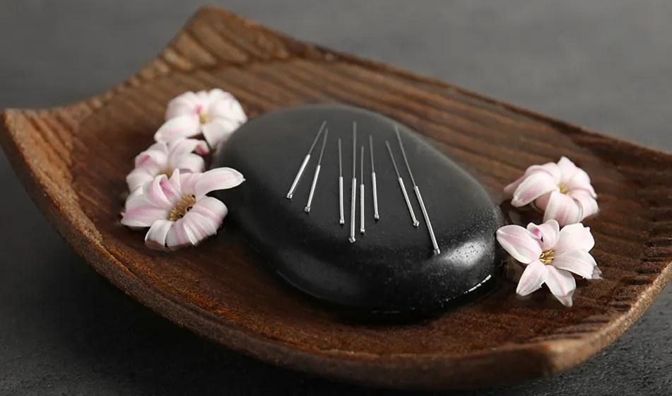Médecine chinoise - acupuncture avis