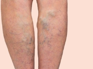 Tips for treating varicose veins