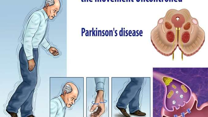 Are sleep issues a factor on Parkinson's