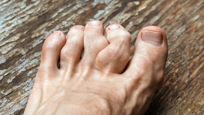 Who can get gout?