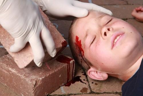 Traumatic Brain Injury in American Children
