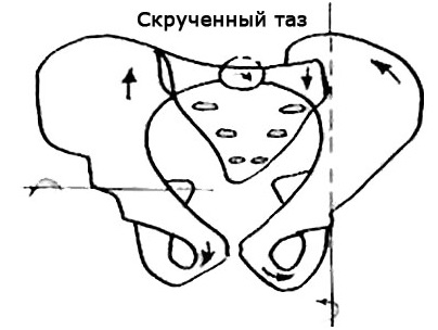 Асимметрия таза у взрослых