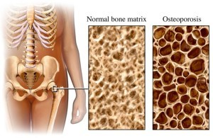 OSTEOPOROSIS HELP