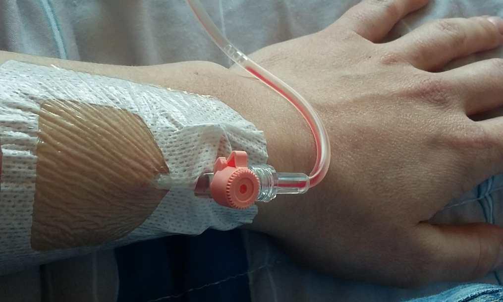 infuus lever cyste aspiratie