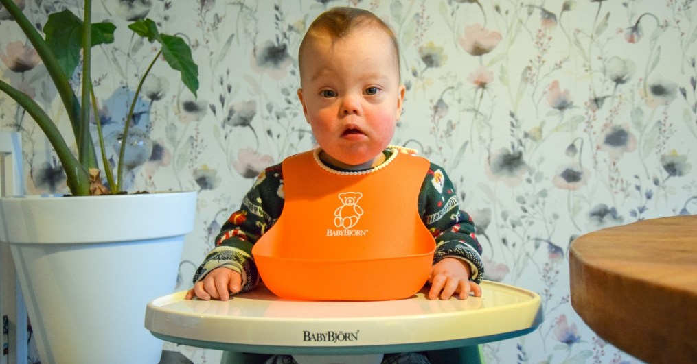 downsyndroom down syndrome toddler