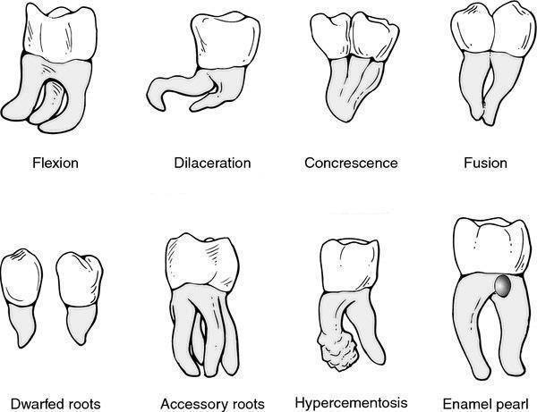 Developmental anomalies of tooth PDF