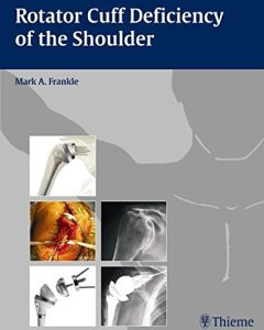 Rotator Cuff Deficiency of the Shoulder PDF