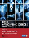Basic Orthopaedic Sciences 2nd Edition PDF