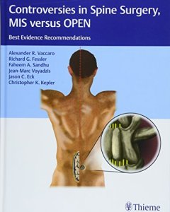 Controversies in Spine Surgery MIS versus OPEN PDF