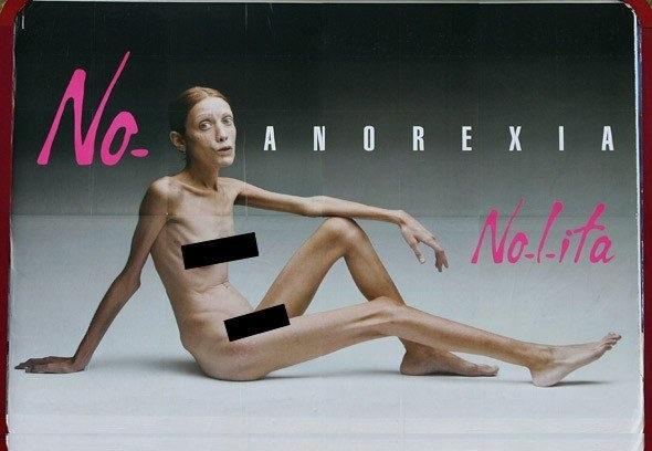 Анорексия — болезнь из-за стремления к совершенству