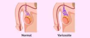 Qu 'est ce que la varicocèle testiculaire