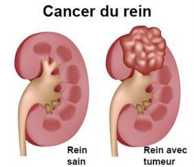 cancer des reins