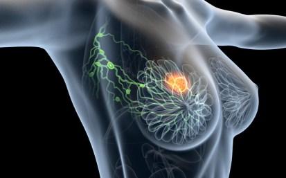cancer de sein