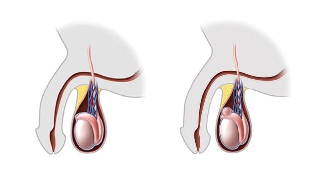 Spermatocèle : causes