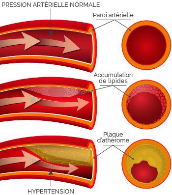 blocage progressif des artères par la graisse