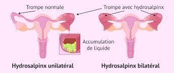 remède naturel pour corriger les trompes dilatées