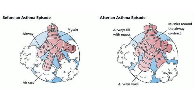 Asthma Attack Before and After immediate treatment