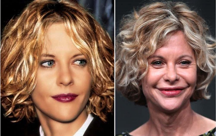 Meg Ryan Plastic Surgery Amazing Things In The World
