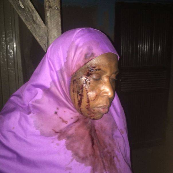 mss_sashs Shares Photos Of Woman Brutalized By Stepchildren While Trying To Kill Her In Anguwan Rimi kaduna 2
