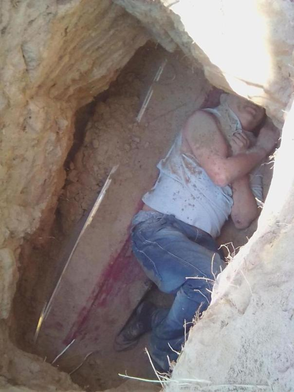Russian Man Has Been Arrested After Digging Up His Girlfriend's Grave And Setting Her Corpse On Fire (3)