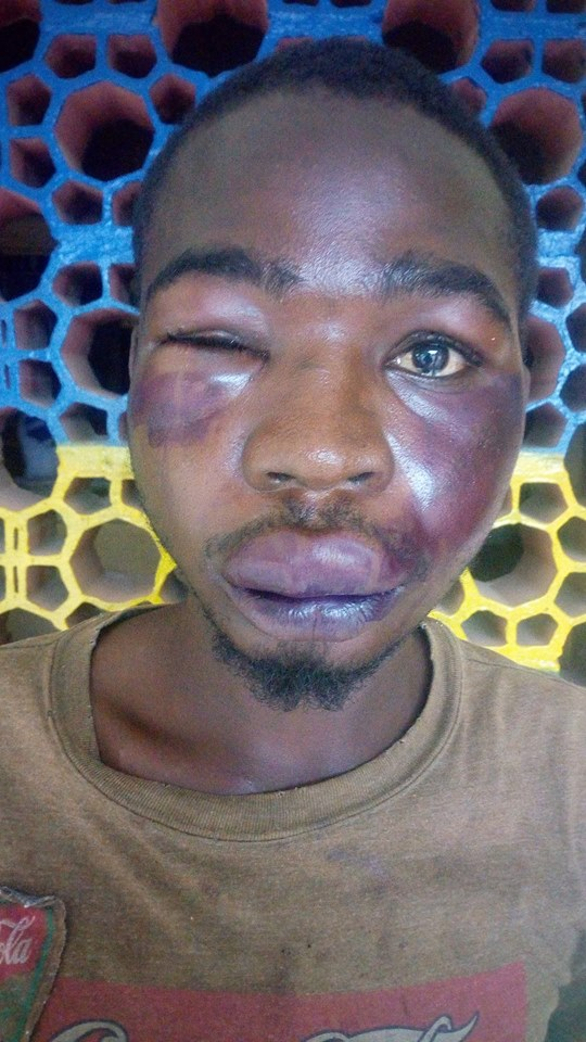 Man Was Savagely Beaten Up After He Called Someone 'Mad Man' In Kano State
