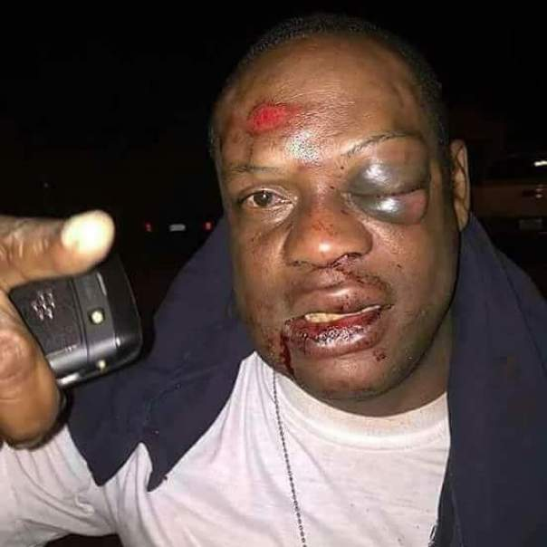 Man Was Beaten For Sleeping With Another Person's Wife (3)