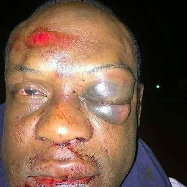 Man Was Beaten Black And Red For Sleeping With Another Person's Wife