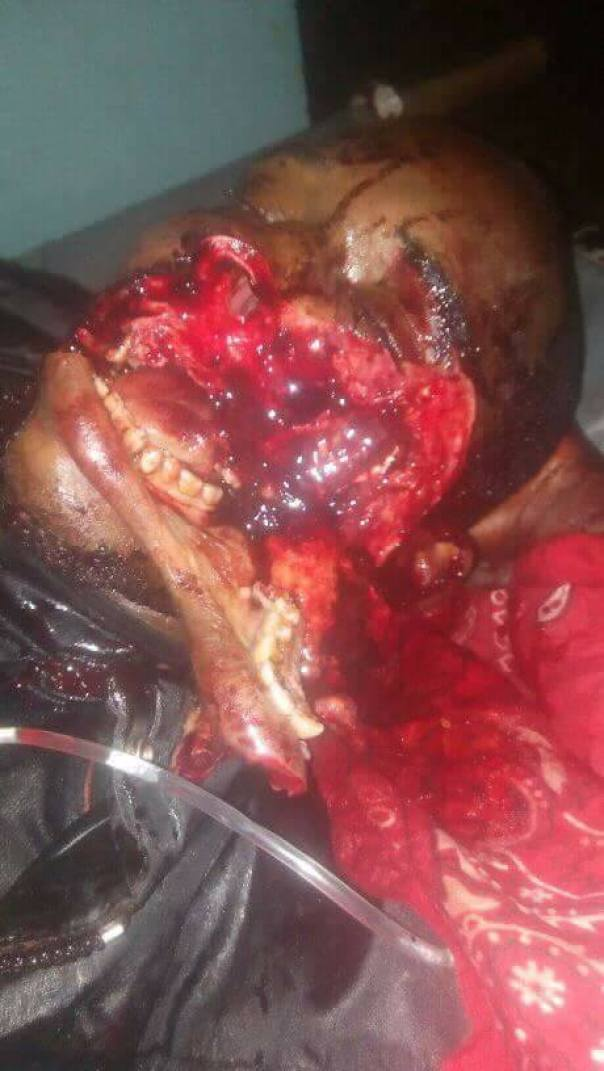 Soldier Dies After Being Shot In The Face By Armed Attackers In Nasarawa (3)