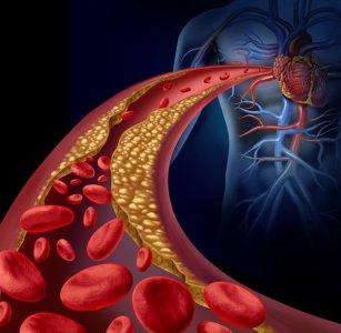 colesterol en la sangre