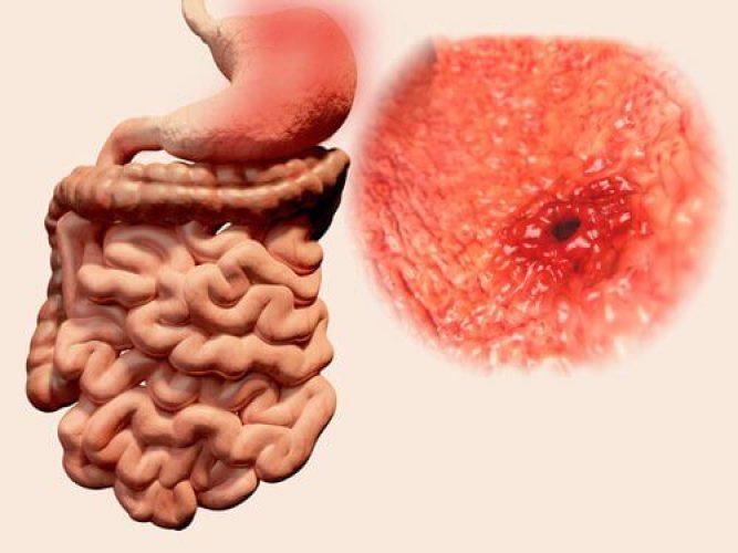 Une sensation de vide peut être liée à un ulcère d'estomac.