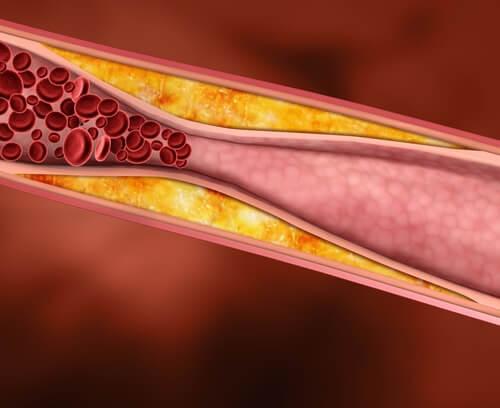 le jus de raisin réduit les taux de cholestérol