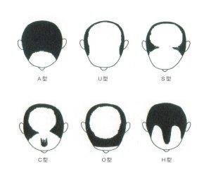 男性型脱毛症(若年性・壮年性脱毛症)