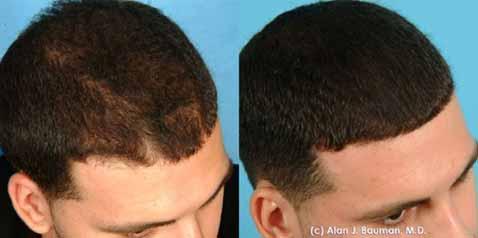 PRP Treatment For Hair Loss AHB