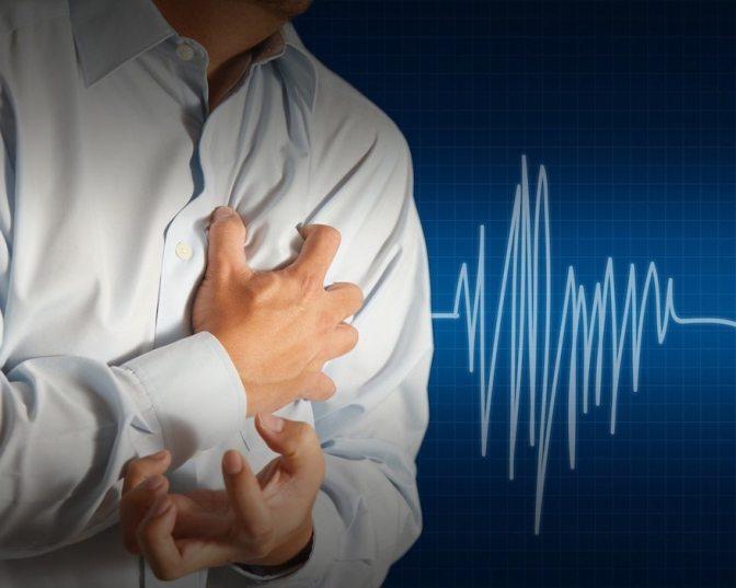 Por qué los humanos somos los únicos animales que mueren de infartos