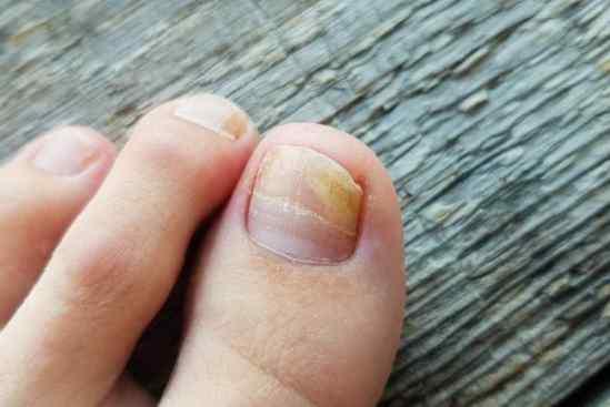 onicílisis y salud de uñas