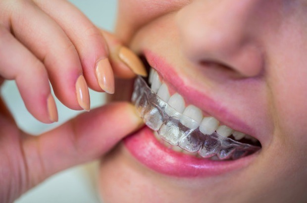 La odontología cosmética cuenta con diferentes procedimientos para lograr un diseño de sonrisa perfecto