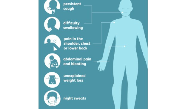 Most Common Mesothelioma Symptoms