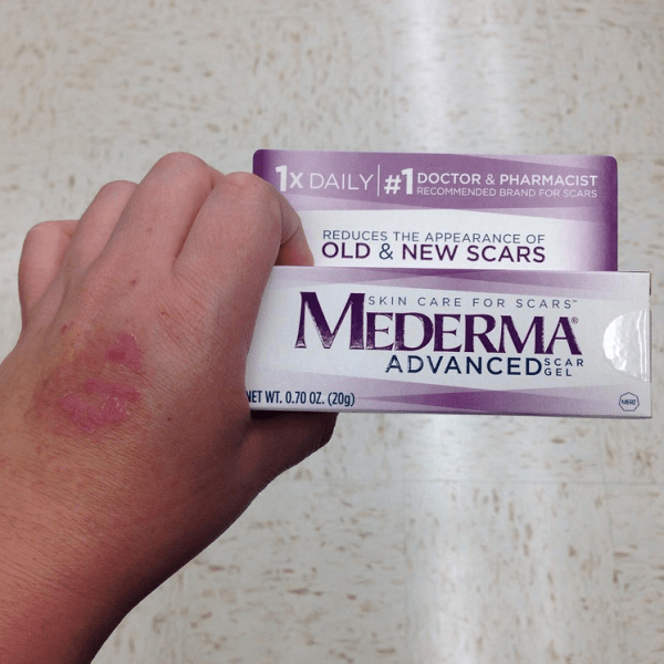 mederma review for healing dog bite