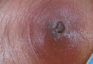 蜂窩織炎の症状の写真 膿 2