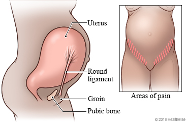 チクチク 左下 腹痛