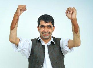 abdul-amrita-second-double-hand-transplant-india